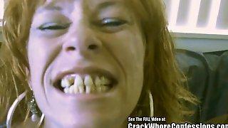 Donkey Teeth Red Head Mom Crack Slut